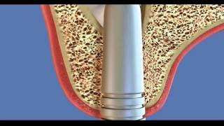 Хирургическая стоматология. Увеличение количества кости синус лифт(, 2014-10-24T22:47:41.000Z)