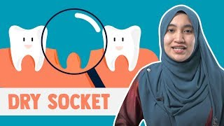 What is Dry Socket? Symptoms and how to fix it! Featuring Dr. Currie!.