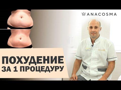 Как похудеть за 1 СЕАНС: медицинский криолиполиз Cristal | АНА КОСМО