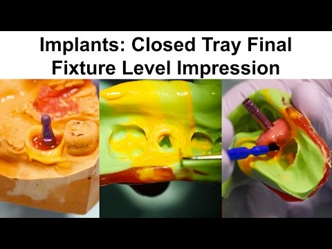 6. Implants: Closed Tray Final Fixture Level Impression
