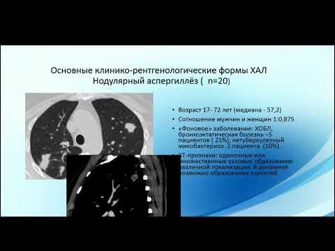 Николаева Н.Г. «КТ в диагностике хронического аспергиллеза легких»