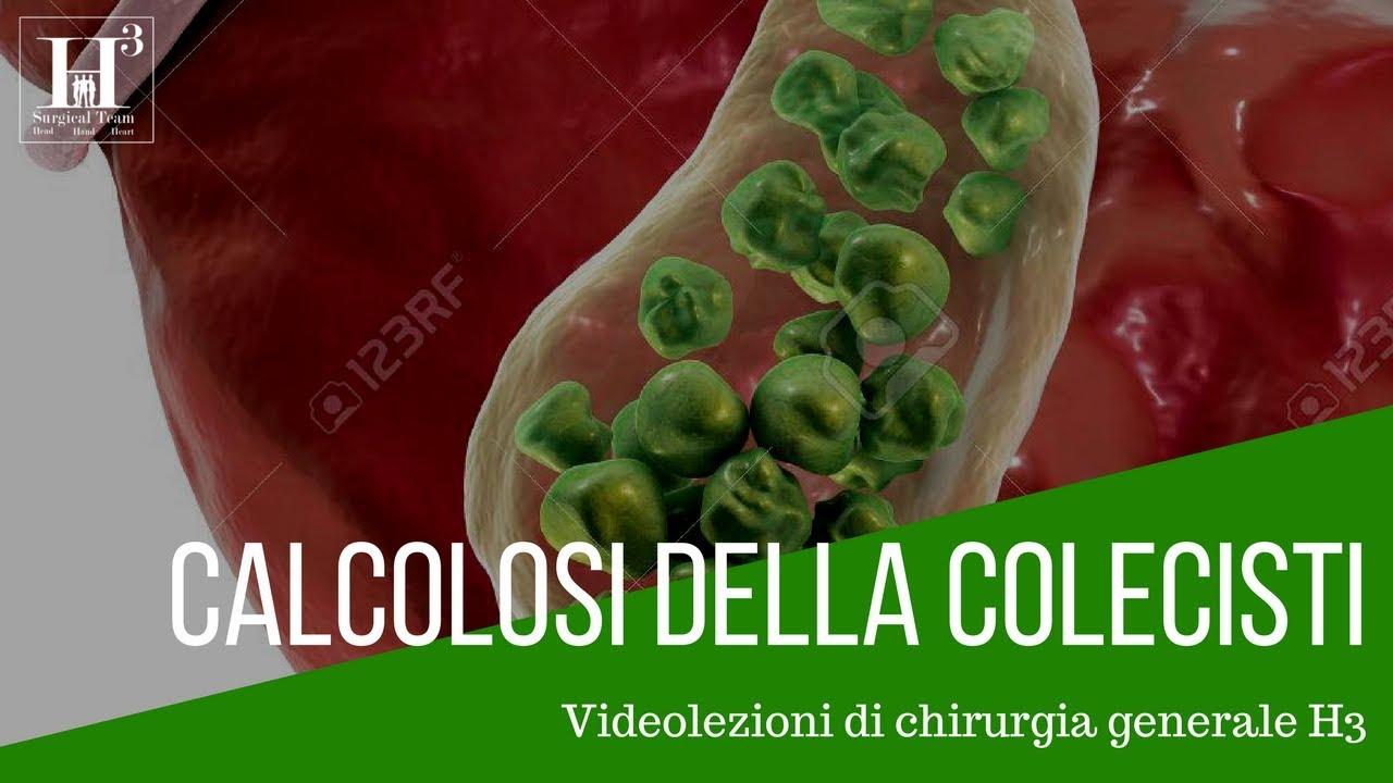 dieta per colecistite litiasica cronica