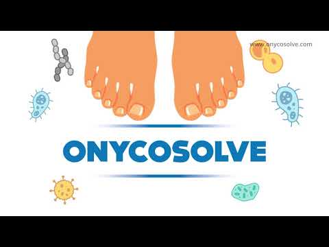 OnycoSolve – A Powerful Weapon Against Feet Fungus