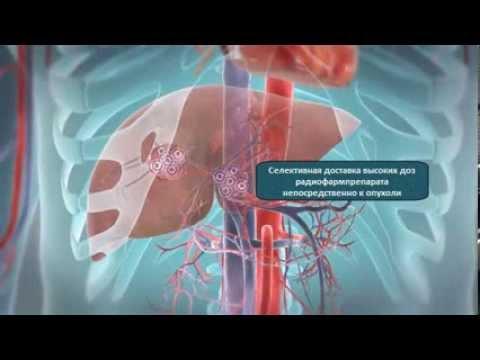 Рак печени - симптомы болезни, профилактика и лечение Рака
