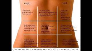 Differential diagnosis of abdominal pain according to abdominal regions