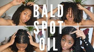 Growing back my bald spot  Ayruvedic Hair Growth Oil Recipe  CURLTUREUK