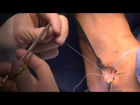 Ankle Stabalization And Tendon Repair Surgery - Houston's Foot Doc