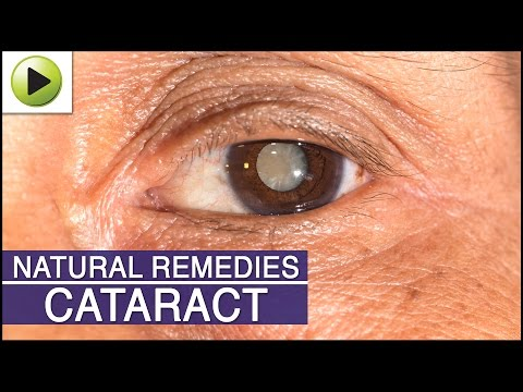 Cataract - Natural Ayurvedic Home Remedies