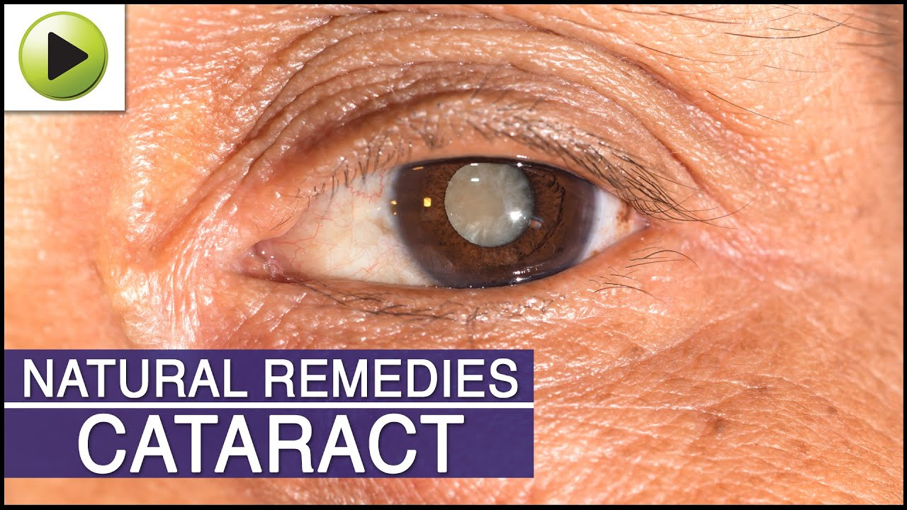 Cataract natural ayurvedic home remedies youtube for Wallpaper removal home remedy