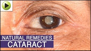 Cataract - Natural Ayurvedic Home Remedies