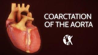 Coarctation of the Aorta in Children | Symptoms & Repair