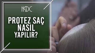Protez Saç Nasıl Yapılır? - HDC