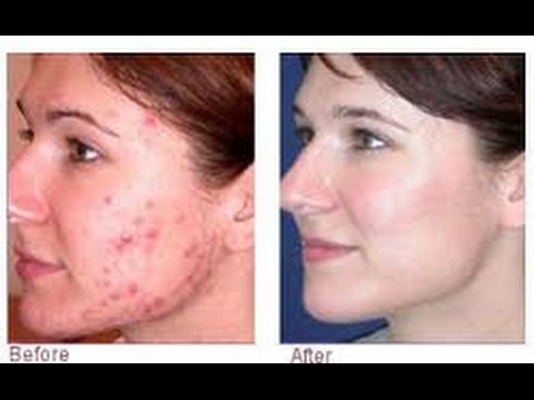 Of Rid To Redness Get Spots How From