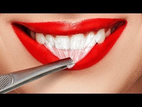 Video Cara Menghilangkan Komedo Menggunakan Sikat Gigi