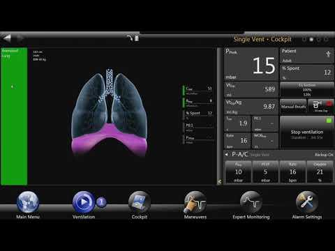 Bellavista™ Ventilator: Animated Lung