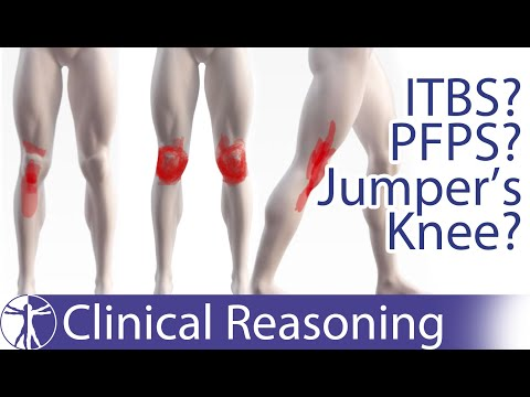 Atraumatic Knee Pain Differential Diagnosis | ITBS, PFPS, Jumper's Knee