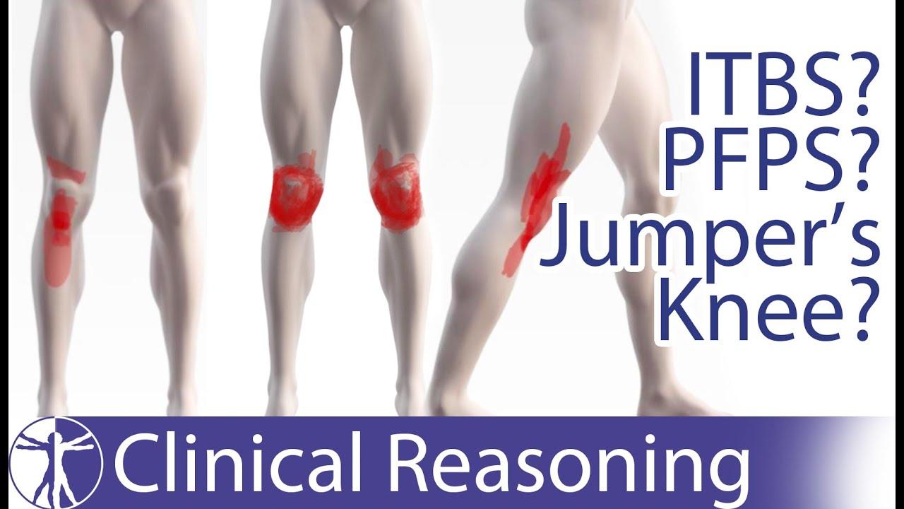 csont és ízületi fájdalom az ödéma eltávolítása térdízület artrózisával