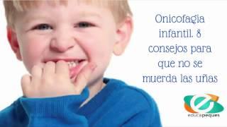 Onicofagia infantil. 8 consejos para que no se muerda las uñas