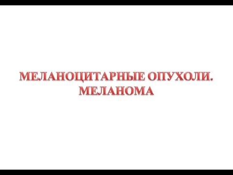 Меланоцитарные опухоли - меланома
