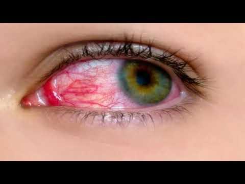Что делать если глаз красный и болит