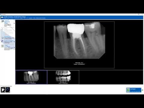 Training - Apteryx XrayVision DCV: Editing Single Image Information in DCV Capture