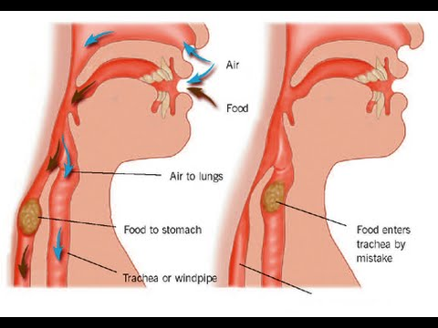 aspiration pneumonia - youtube, Human Body