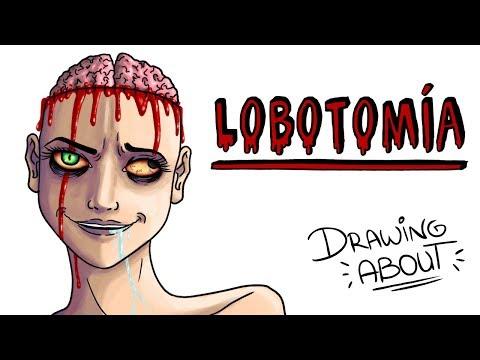 LOBOTOMÍA 💉🧠 | Draw My Life