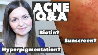 Acne Q&A - How to Take Biotin without Breakouts - Hyperpigmentation - Sunscreen Indoors