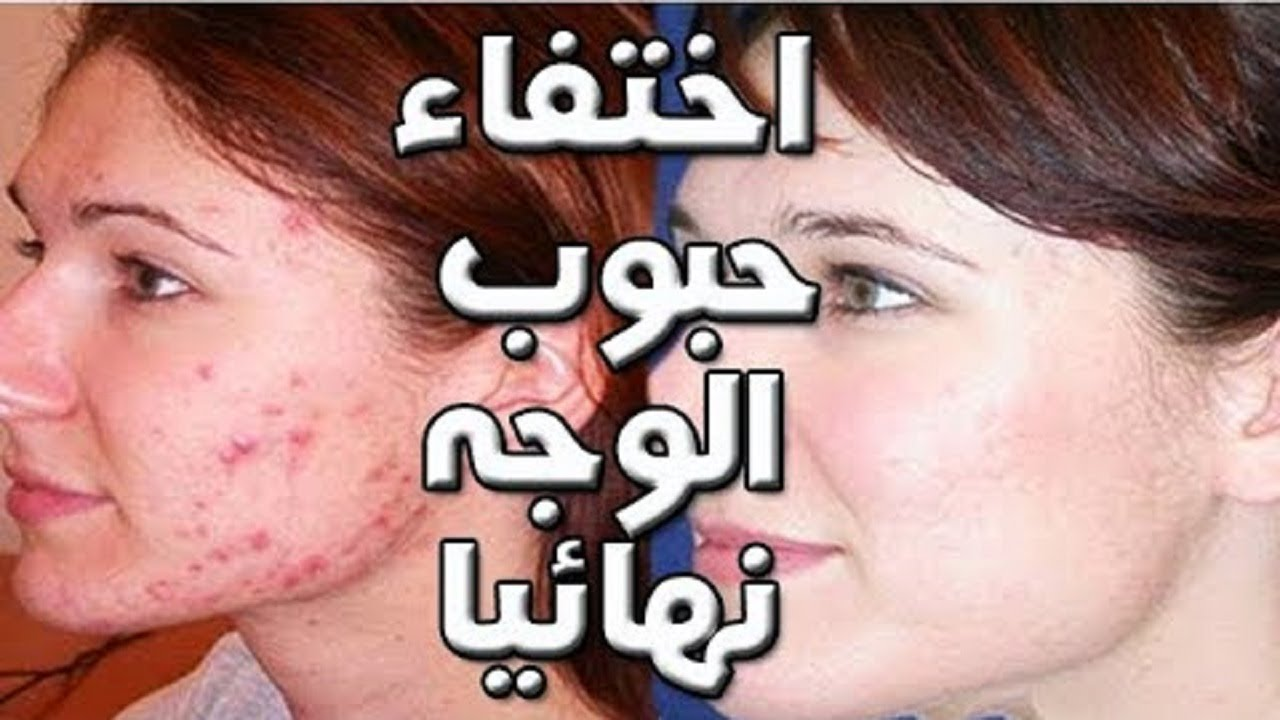 خلطة لعلاج حب الشباب 3 ايام للرجال والنساء وصفة فعالة في ازالة حب الشب Okay Gesture