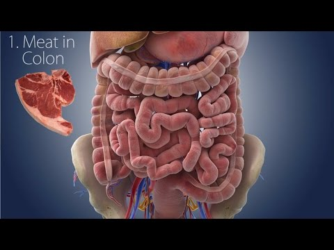 Cause and Cure?: Ulcerative Colitis