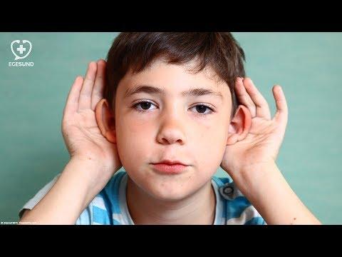 Abstehende Ohren Youtube
