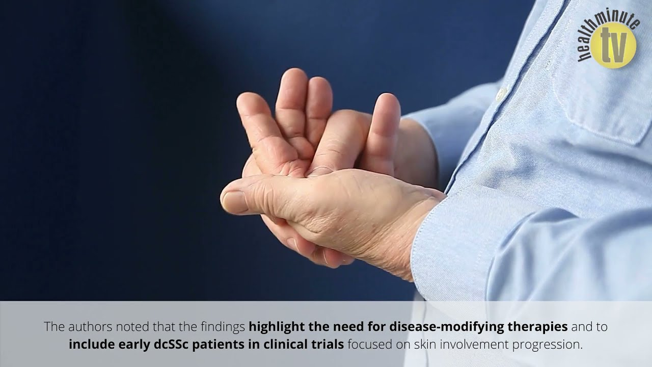 VIDEO: New study highlights need for treatment options for diffuse cutaneous systemic sclerosis
