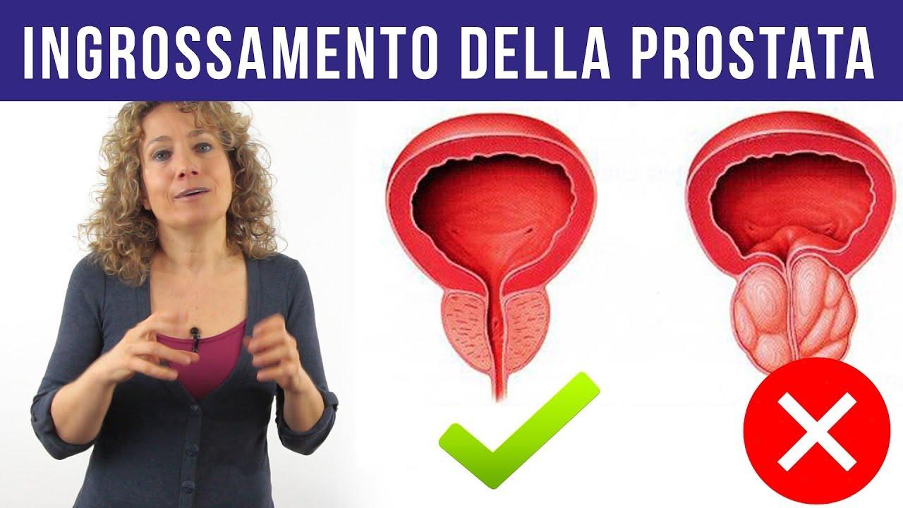 disfunzione erettile cure di simona oberhammer