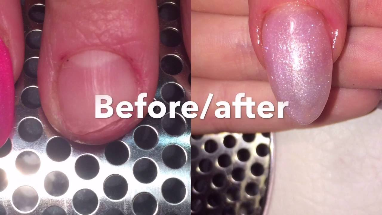How To Fix A Broken Bitten Nail With Acrylic