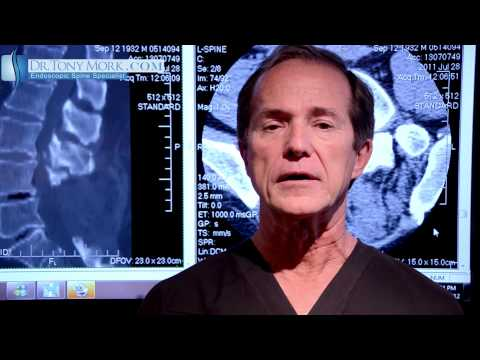 Epidural Steroid For Lumber Spinal Stenosis Pros and Cons by Dr. Tony Mork