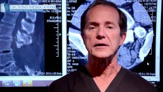 Epidural Steroid Lumber Spinal Stenosis Pros And Cons Dr Tony Mork