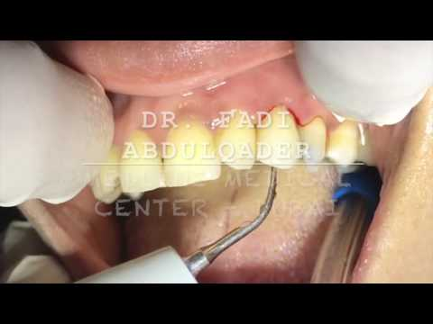 Dental demonstration for crown cementation by Dr. Fadi Abdulqader