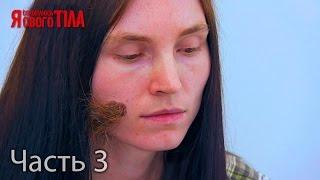 видео Волосы на родинках