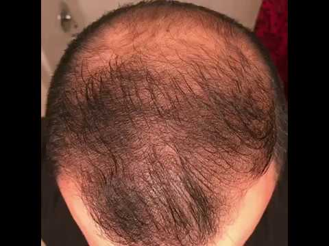 11 months using minoxidil - Rogaine 5% Before & After results