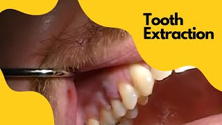 Extraction Tooth #4 - Severe Angulation of the root AND a fracture using Physics Forceps