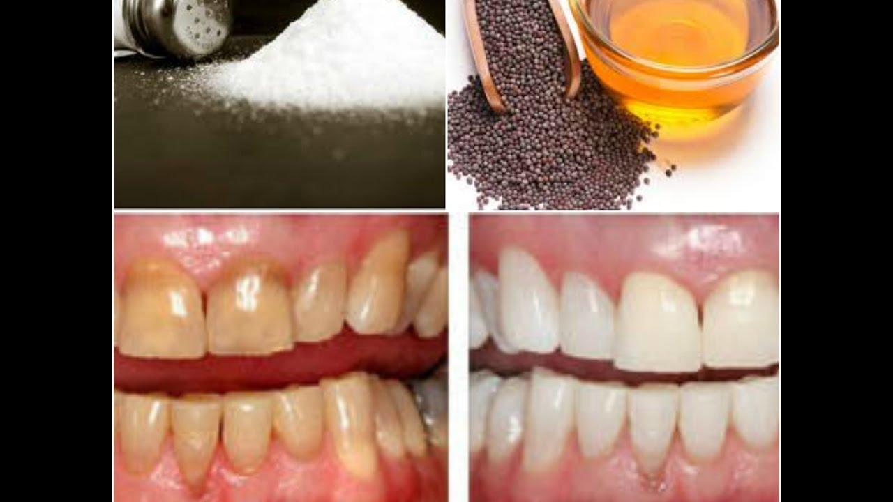Whiten Teeth Using Mustard Oil And Salt Remedy सरस क
