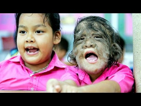 Werewolf Syndrome - Rare Medical Conditions