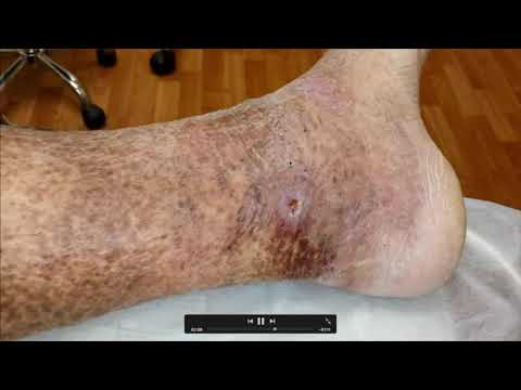 Трофические нарушения при варикозе - проходят после лазерного лечения????
