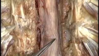 внешенее строение спинного мозга