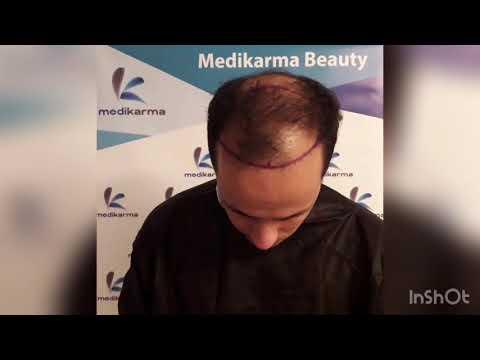 مجموعة مدیکارما اسطنبول _ نحن نضمن نتائج حقيقية لزراعة الشعر