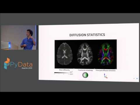Ariel Rokem: Statistical learning of human brain structure