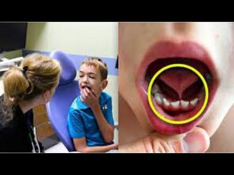 Non Parla fino ai 6 Anni, ma poi la Dentista fa una Scoperta che gli Cambia la Vita
