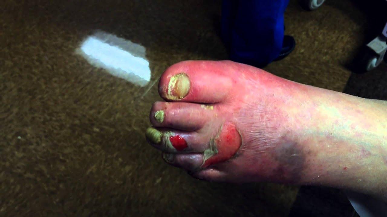 diabetes con sarpullido en los pies