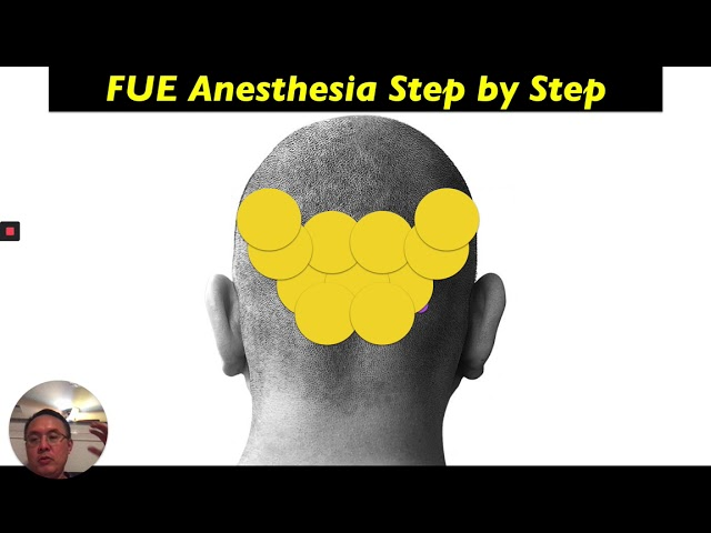 Dr. Lam's Lecture on FUE/FUT Anesthesia
