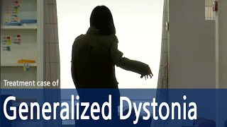 Generalized Dystonia/Dystonia/Cervical dystonia/Spasmodic Torticollis